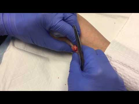 Squeezing Out a Lipoma