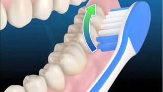 La correcta técnica del cepillado - Clínica Dental Basi