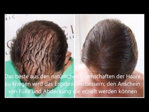 Bei wem das Haar nach der Aufhebung diane prolabierte