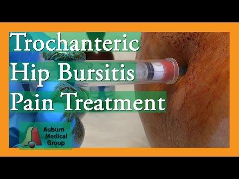 Osteoartrite del trattamento dellanca