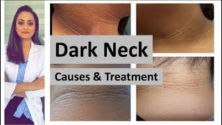 dark neck | causes|  treatment | Home remedies | Dermatologist| Dr. Aanchal Panth