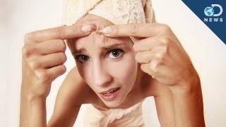 Acne Bacteria Clears Skin?