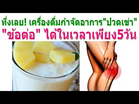 คำแนะนำ thrombophlebitis