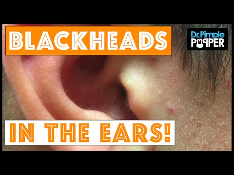 Dr. Pimple Popper: Deep Blackheads in the Ear!