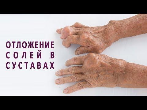 Операции на тазобедренный сустав уфа