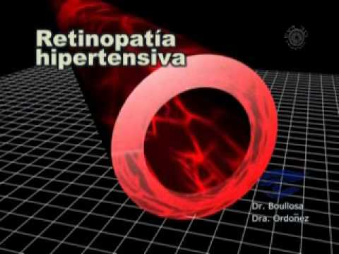 Método Bubnovskaya para la hipertensión