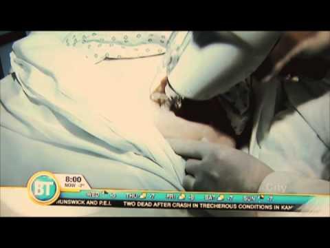 EnerJet demonstration at SpaMedica on BT Canada   SpaMedicaTV    Video Thumbnail