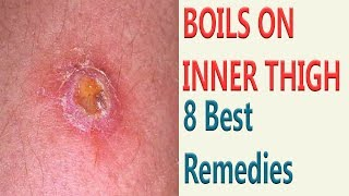8 Best Remedies  To Get Rid Of Boils On Inner Thigh