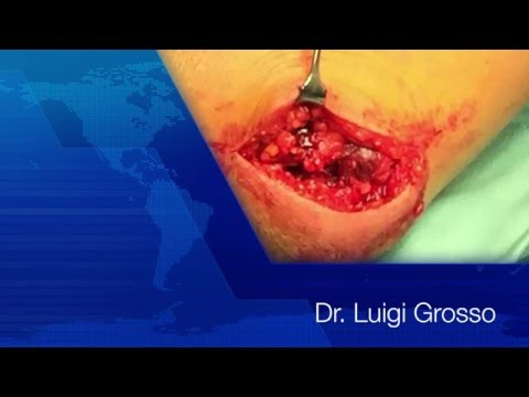 La massa del rachide cervicale