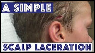 A Sunday Scalp Laceration