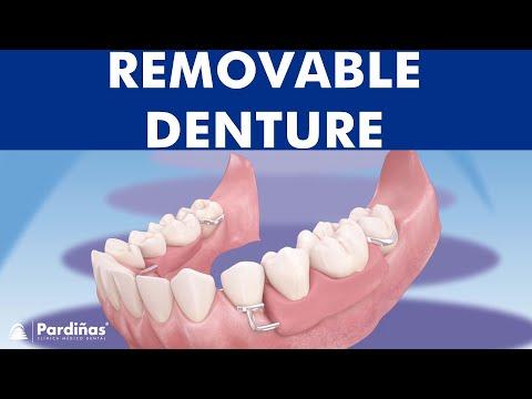 Removable partial denture ©