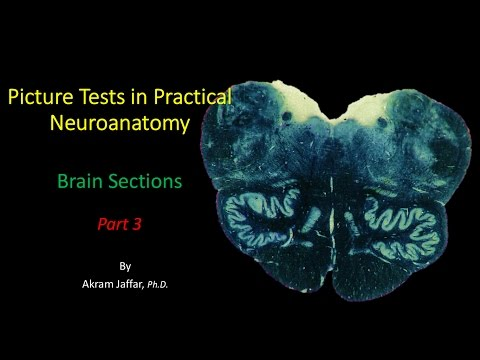 Picture Test in Neuroanatomy Brain Sections 3
