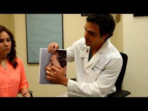 Rib Revision Rhinoplasty