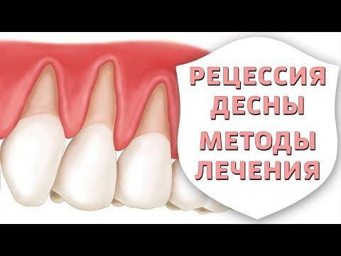 Рецессия десны. Оголилась шейка зуба - мифы и правда о лечении | Воспаление десен | Дентал ТВ