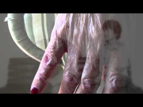 Medicina per un fungo seboreyny