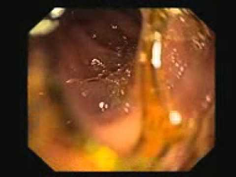 Video endoskopi gerd dan gastritis erosiv