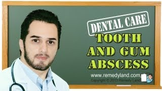 Tooth abscess and gum abscess and home remedy for dental abscess and periodontal abscess