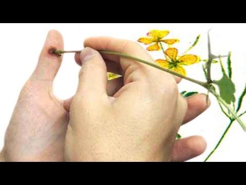 Trattamento di pezzo di un fungo di unghie