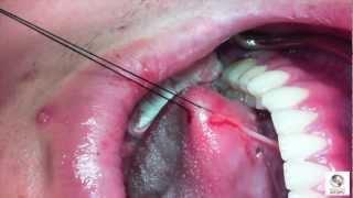 Treatment of Ankyloglosia: Laser Frenectomy