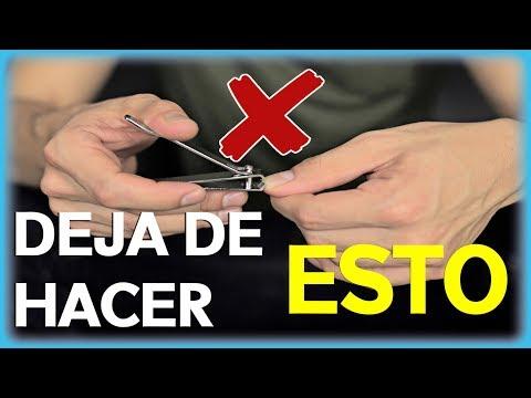 Las causas el tratamiento de las uñas después de la lesión