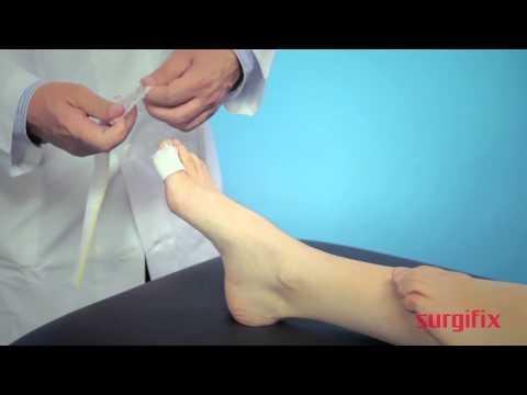 Notizie in trattamento di un fungo di gambe
