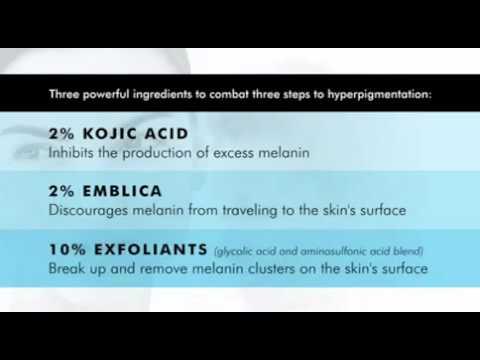 Togliere posti di pigmentary per mezzo di perossido
