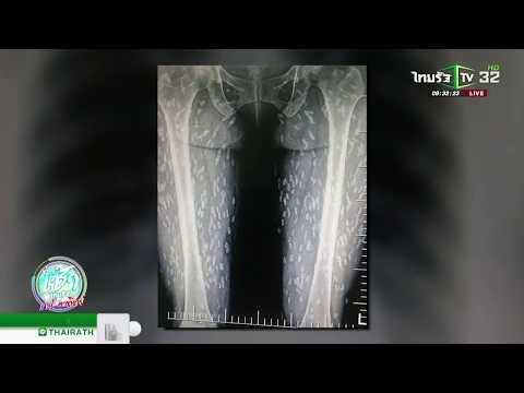 ภาพเอกซเรย์คนไข้เจอพยาธิตืดหมูเพียบ | 06-10-61 | ข่าวเช้าไทยรัฐ เสาร์-อาทิตย์