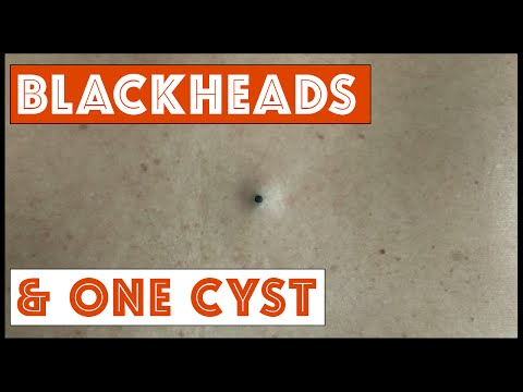 Blackheads and One Cyst