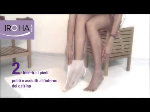 Onikhodistrofiya di unghie della ragione e il trattamento a donne