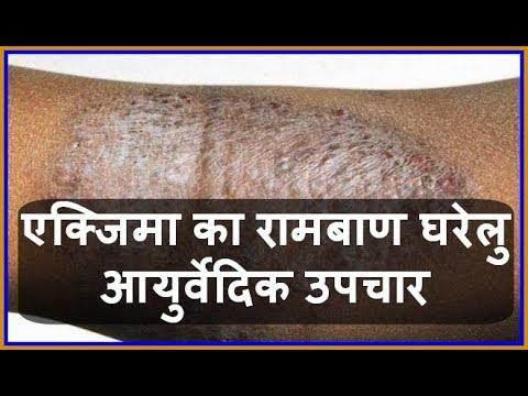 Nata de creme contra o sol de crianças em dermatite atopic