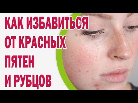 Корень солодки для отбеливания кожи лица