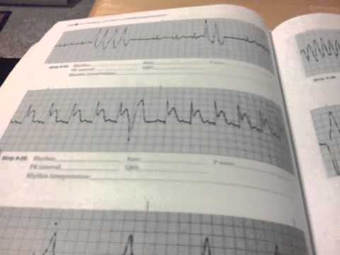 How I learned and earned my ECG/EKG certification and telemetry ...