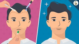 Hair Loss Treatments For Men (According To Science)