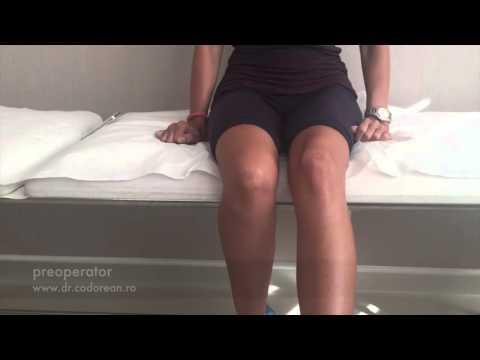 Tratamentul durerii articulare la mâini