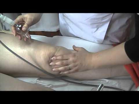 Dolore alle articolazioni dei piedi dopo un allenamento da fare