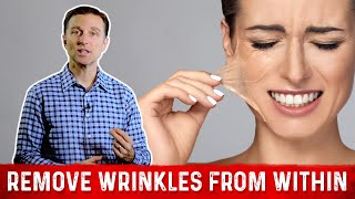 How To Get Rid Of Wrinkles ? : Dr.Berg On Collagen Peptides