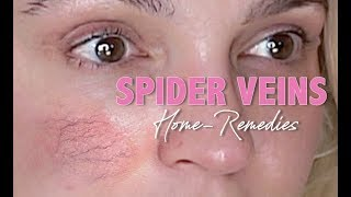 SPIDER VEINS (eczema & more) | HOME REMEDIES