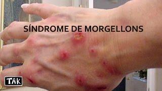 Tak  - Doença causada pelos chemtrails : Síndrome de Morgellons