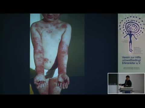 Die Diagnostik des Ekzems dermatowenerologija