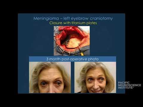 Oponiaki - chirurgia minimalnie inwazyjna  i endoskopowa