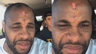 Daniel Cormier | Training camp sucks!!! | Fights Derrick Lewis at UFC 230