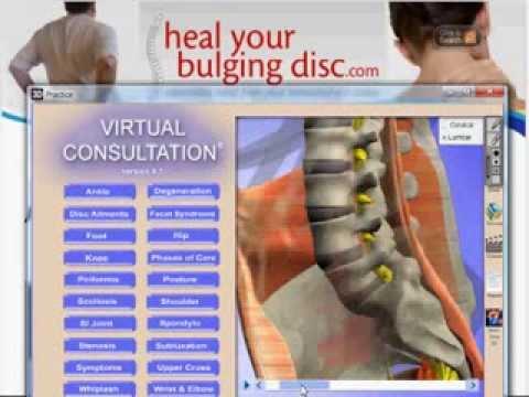 Il collo osteochondrosis come curare il capogiro