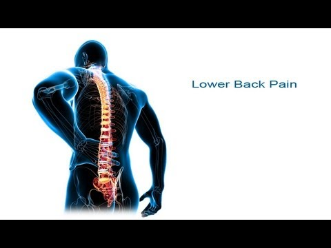 Video 5 Steps to Lower Back Pain Relief