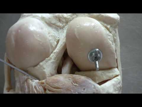 Knochenwucherungen an den Gelenken