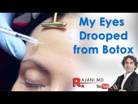 Botox Complications Video