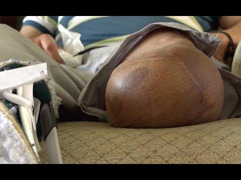 Symptome von Patienten mit Diabetes mellitus