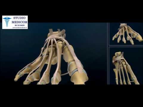 Lappartamento valgusnaya la deformazione di piede cifra mkb