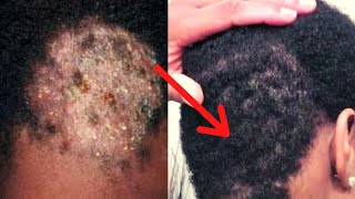 How Do I Cure Ringworm At Its Root | get rid of fungal hair infection at home