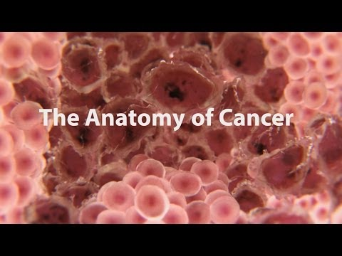Why is it so hard to cure cancer? - Kyuson Yun