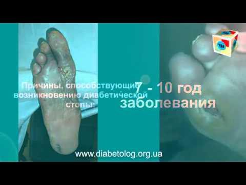 Диагностические тесты сахарного диабета